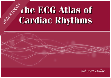 ecg learning book